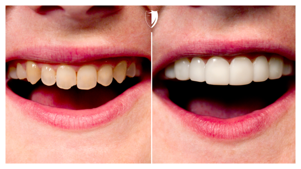 Kristin-Used veneer to improve teeth colors